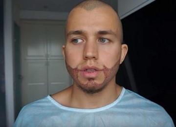 Актер Сергей Романович решился на сложную операцию по пересадке волос на бороду